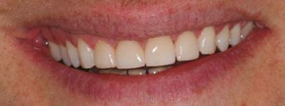 Efter behandling ex.1, Kosmetiska Lösningar, Estetisk Tandvård i Göteborg