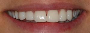 Efter behandling ex.2, Kosmetiska Lösningar, Estetisk Tandvård i Göteborg