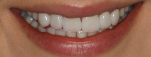 Efter behandling ex.3, Kosmetiska Lösningar, Estetisk Tandvård i Göteborg