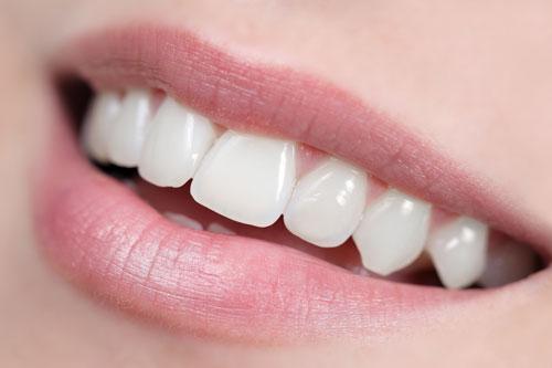 Erbjudande om estetisk och kosmetisk tandvård hos Estetisk Tandvård i Göteborg.