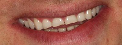 Före behandling ex.1, Kosmetiska Lösningar, Estetisk Tandvård i Göteborg