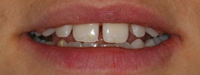 Före behandling ex.2, Kosmetiska Lösningar, Estetisk Tandvård i Göteborg