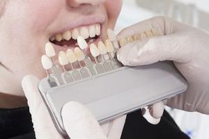 Tandfasader hos Estetisk tandvård i Göteborg
